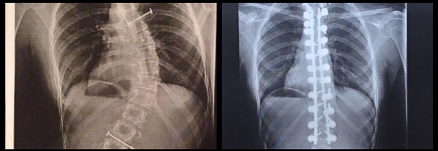 Castile went into surgery to get rods in her back to straighten her back, because of scoliosis.